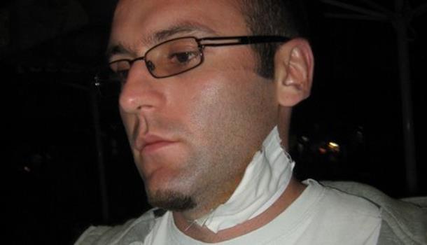 Photo of Gazda ujeo radnika jer mu je tražio platu