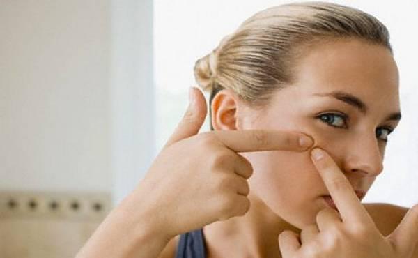 5 prirodnih lijekova protiv mitisera