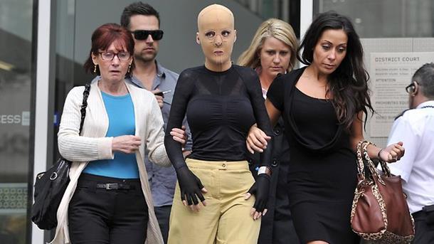 Australija: Srpkinja pokazala lice koje joj je unakazila ljubomorna žena (foto/video)