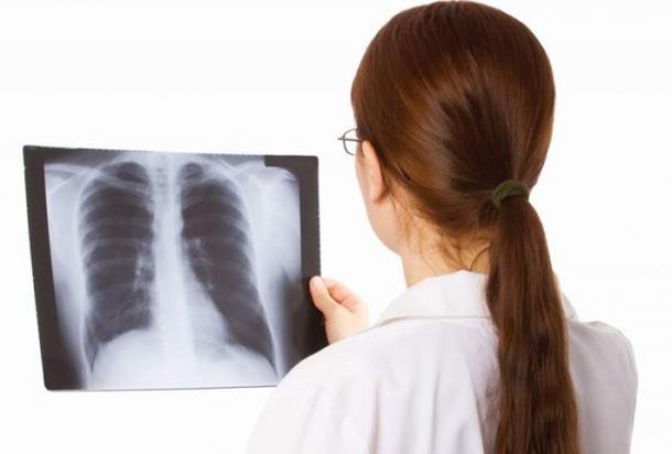 Photo of Ukoliko ih osjećate, HITNO kod ljekara: Prvi simptomi raka pluća!