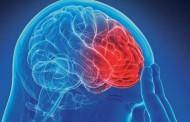 Previše spavanja povećava rizik od moždanog udara