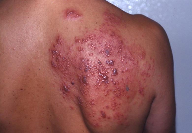 Skoro četiri milijarde ljudi ima virus herpesa!