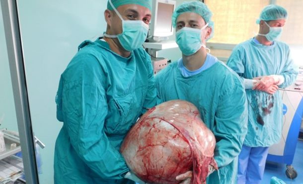 Banjalučki doktori odstranili tumor od 31 kilograma