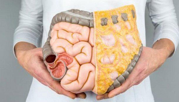 Mladi imaju duplo veću šansu da obole od raka debelog crijeva
