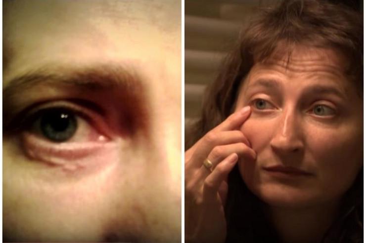 Probudio je bol, mislila je da je ujeo insekt, a onda je osjetila kako joj nešto gmiže u oku (video)