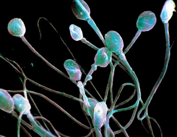 Drastičan pad broja spermatozoida kod modernih muškaraca, prijeti nam izumiranje