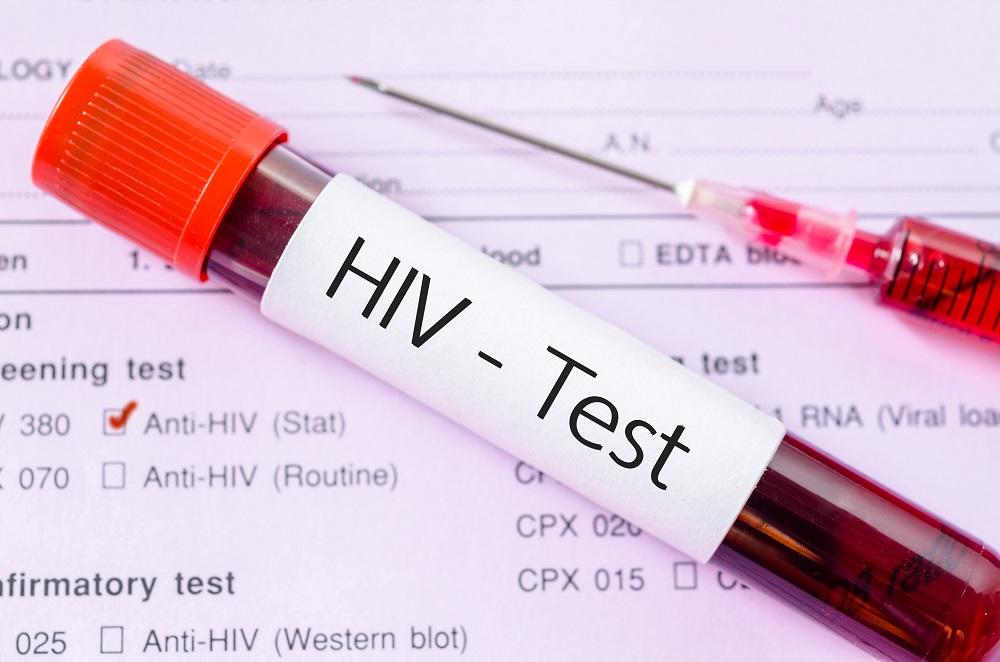 Photo of Svake sedmice 7.000 djevojčica bude zaraženo HIV-om