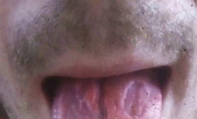 Photo of Pio šest energetskih pića dnevno i pokazao uništeni jezik