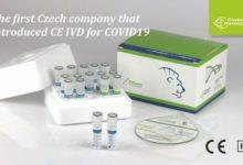 Photo of Nabavljeni medicinski izolacioni kitovi za testiranje na virus Kovid-19