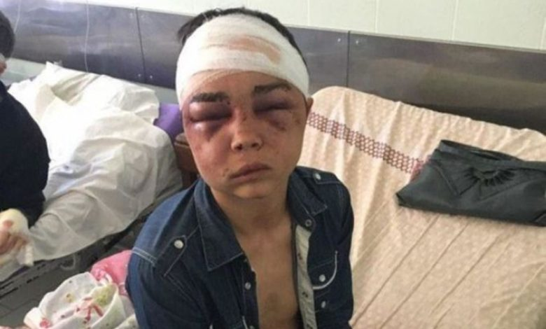 Photo of Dječak brutalno tučen i silovan: Napao ga momak njegove bivše djevojke