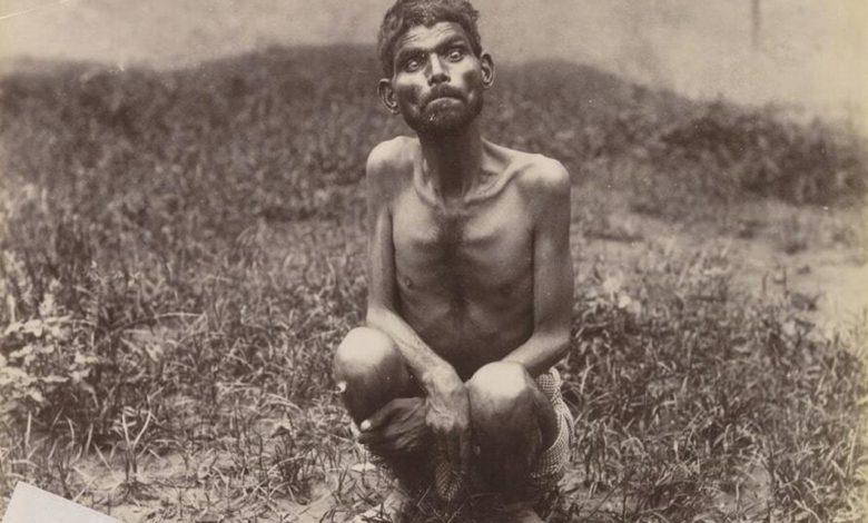 Photo of Kratki i tužni život Dajne Saničara, divljeg dječaka kojeg su odgojili vukovi